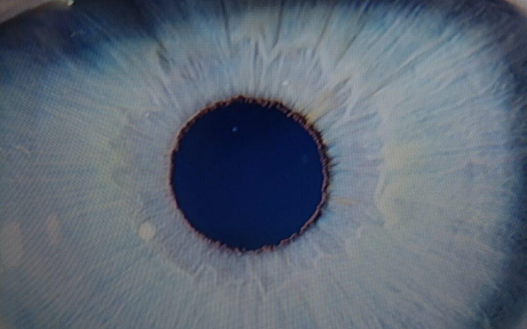 Un ojo con una bonita historia